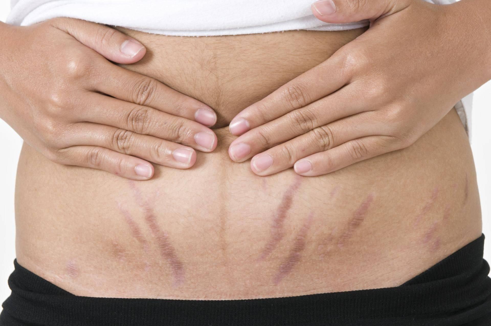 Как бороться с растяжками на груди во время беременности. как от них избавиться?