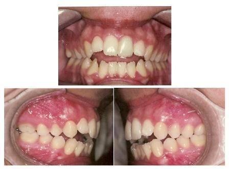 Почему у малышей неровные зубки? причины и симптомы неправильного прикуса у детей