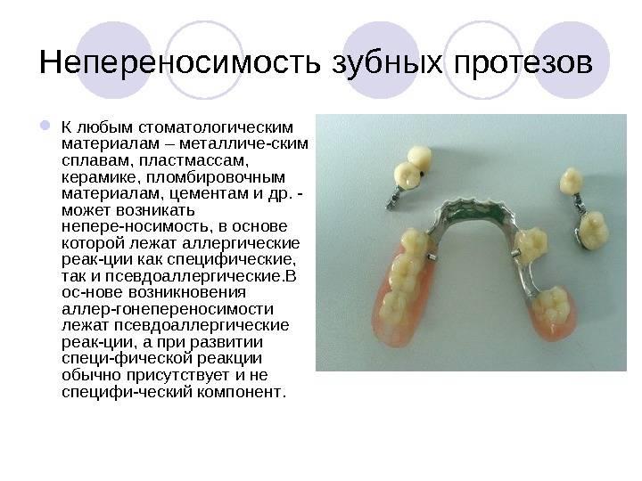 Аллергические реакции на компоненты зубных протезов