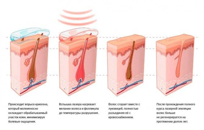 Лазерная эпиляция глубокого бикини: как проходит процедура