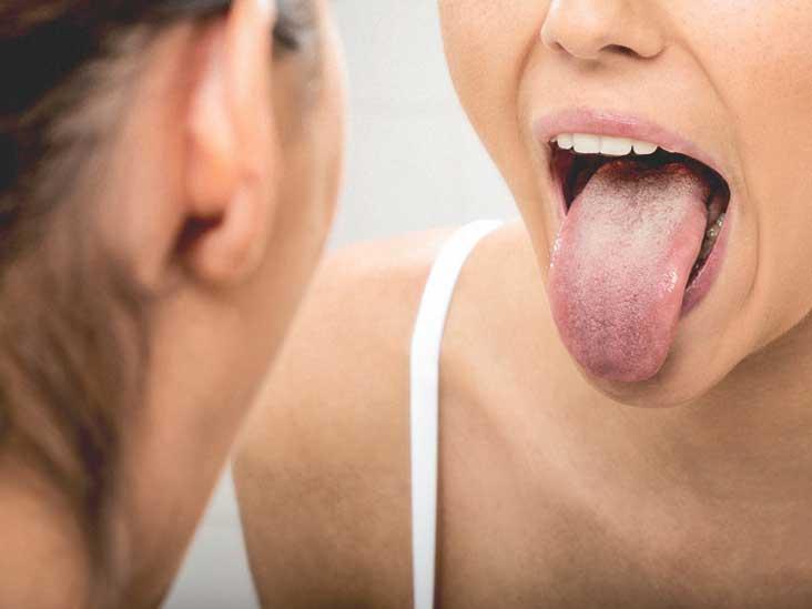 Молочница на губах у ребенка: что собой представляет и как лечится?