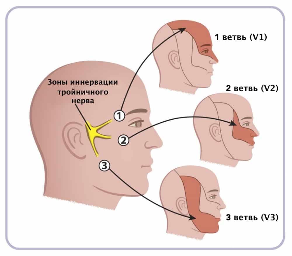 Симптомы и лечение невралгии тройничного нерва