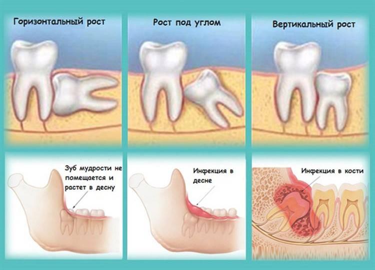 Что делать после удаления зуба мудрости