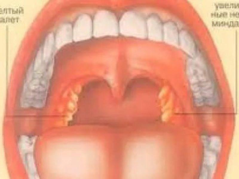 Лечение вирусного стоматита у взрослых, его симптомы