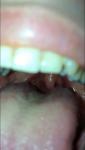 Почему может болеть язык и горло и что необходимо делать