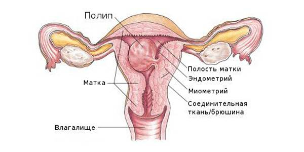 Плацентарный полип после родов: симптомы и лечение