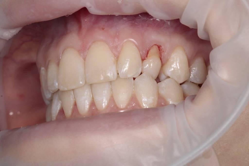 Симптомы кисты зуба с фото, диагностика и лечение в домашних условиях, оперативное удаление