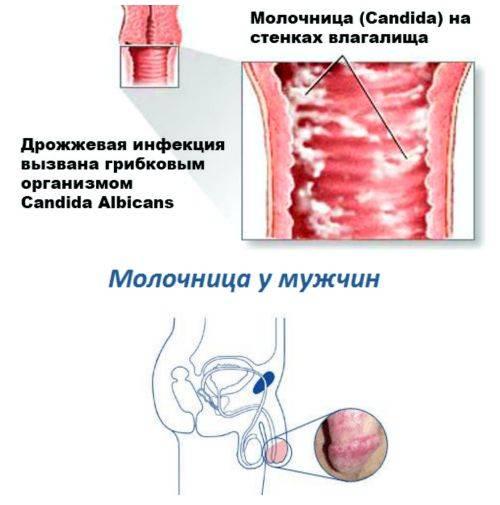 Молочница: симптомы, причины, как лечить