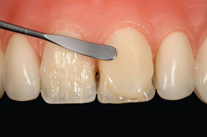 Перелом корня зуба