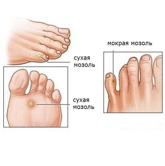 Эффективные способы устранения твердых мозолей на пальцах ног