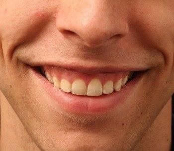 Какие есть методы исправления (коррекции) десневой улыбки?
