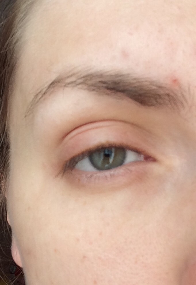 Аллергия вокруг глаз