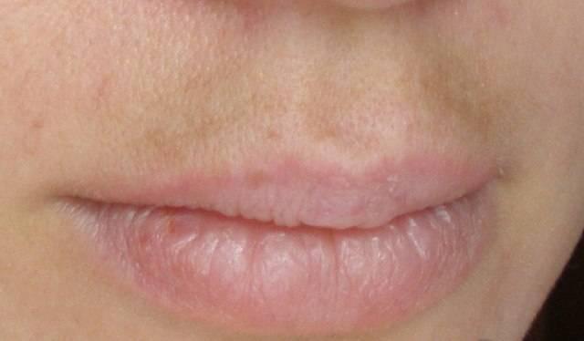 Что делать с чёрной точкой на губе?