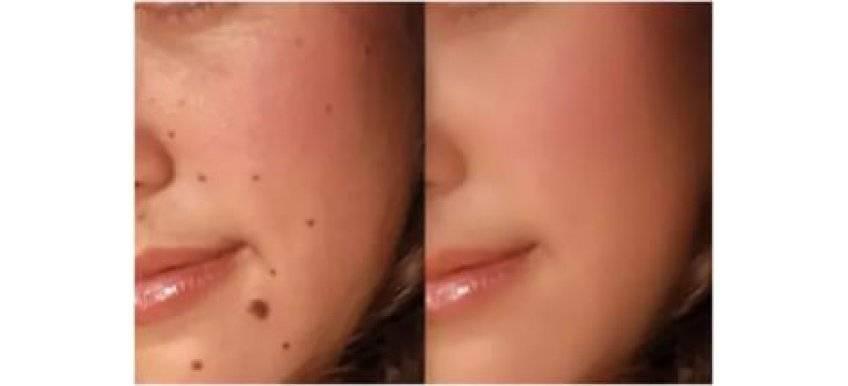 Уход за кожей после удаления папилломы лазером