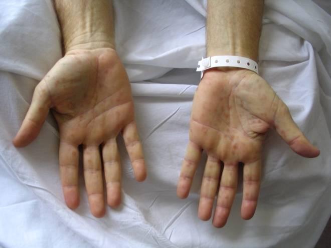 Сифилис у женщин — фото с подробным описанием симптоматики