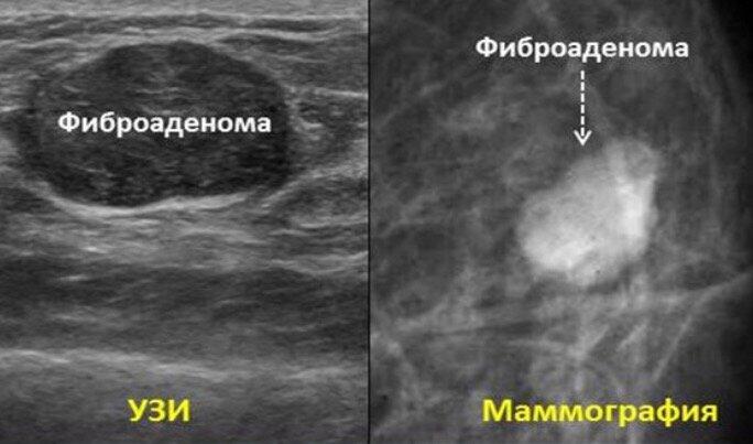 Фиброаденома молочной железы: каковы причины появления, удалять или нет?