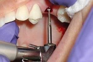 Кому грозит отторжение зубных имплантов?