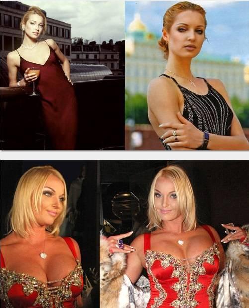 Российские звёзды до и после пластики.