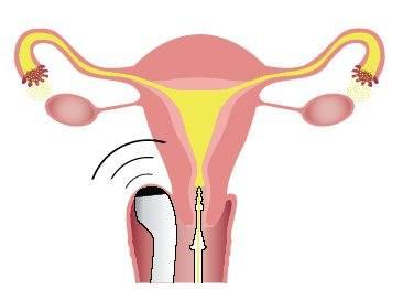 Способы и последствия лечения непроходимости труб. лапароскопия