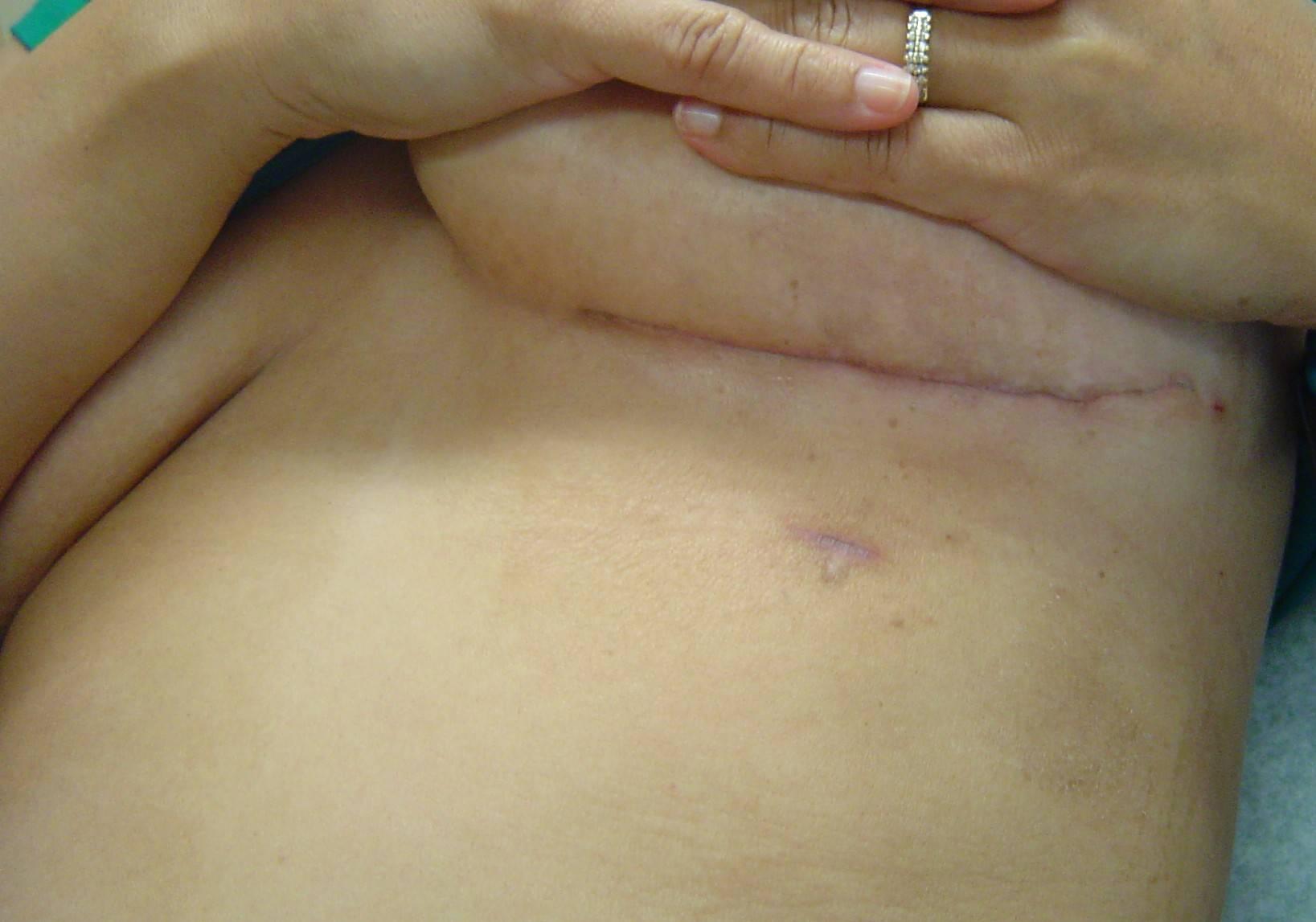 Удаление фиброаденомы молочной железы