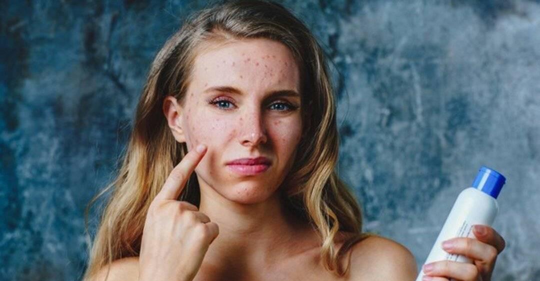 Причины появления и лечение аллергии на руках