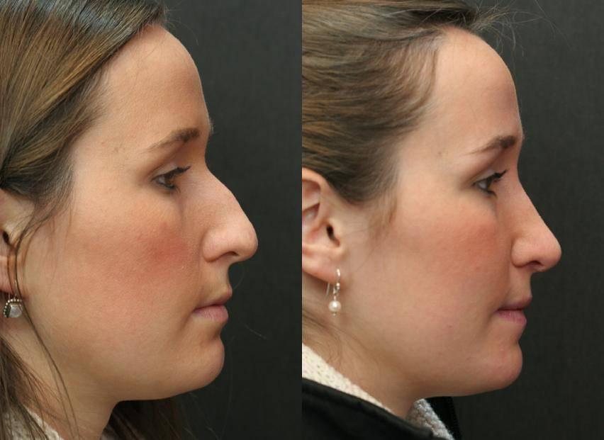 Безоперационная ринопластика носа — виды процедуры и их особенности