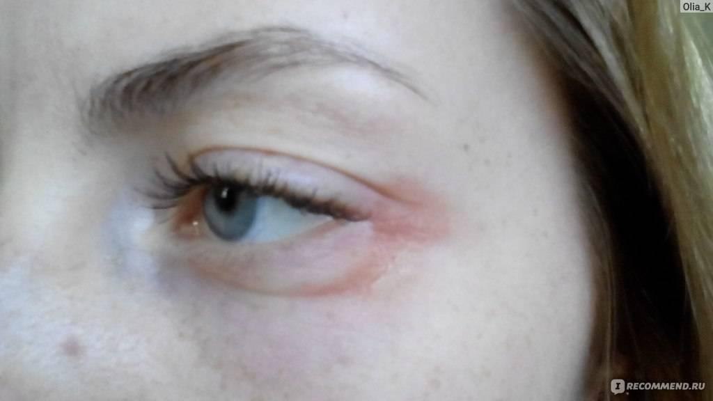 Аллергия на коже — как выглядит, почему возникает и как выглядят самые эффективные лекарства (85 фото)