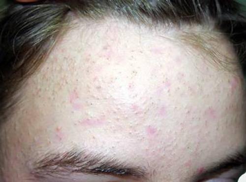 Как убрать сальные пробки на коже головы в домашних условиях
