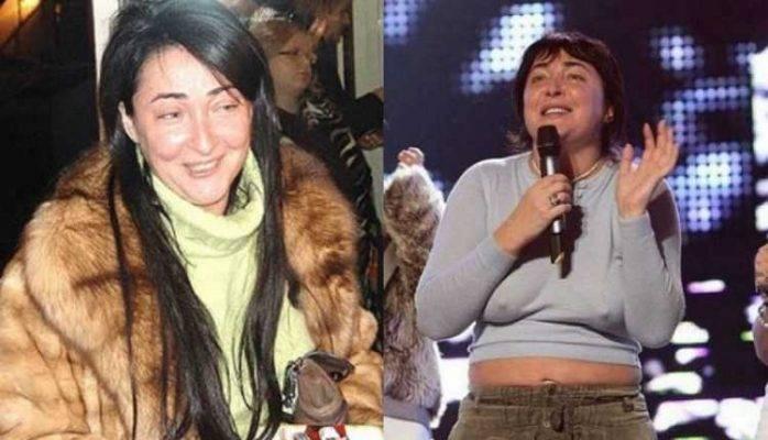 Ханна до и после пластики