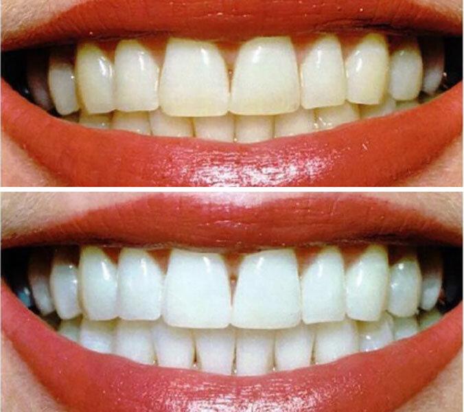Лучшие отбеливатели зубов: независимый топ-7