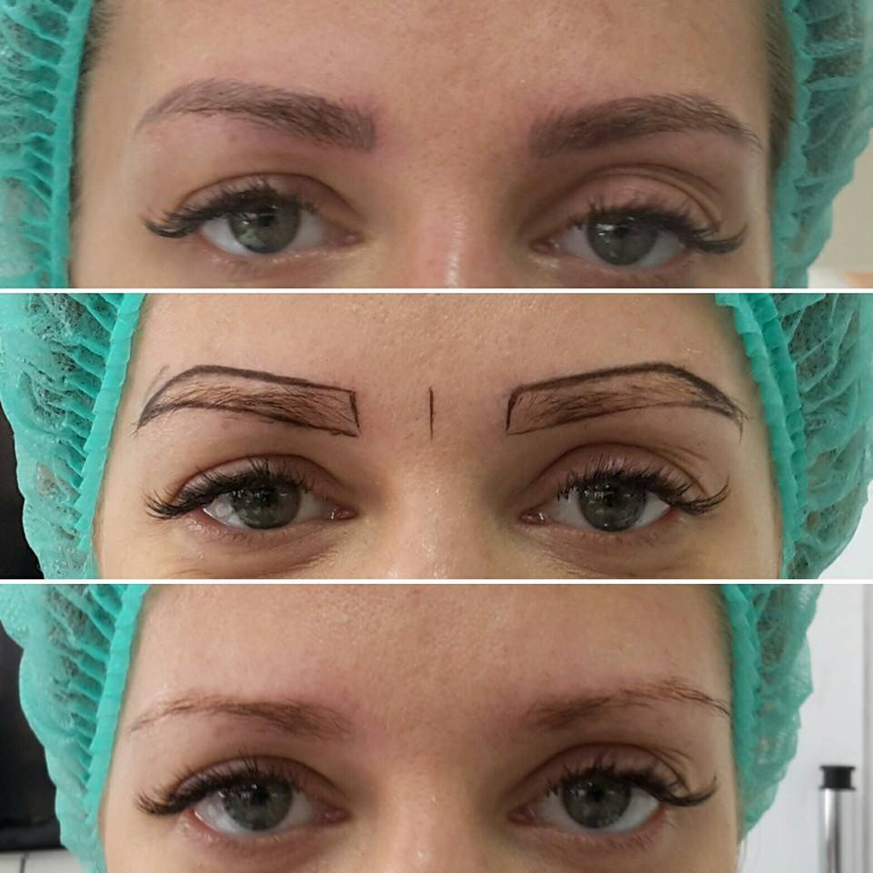 Перманентный макияж бровей: заживление по дням с фото