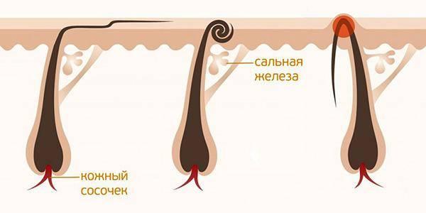 Узнайте почему шугаринг не выдергивает волосы