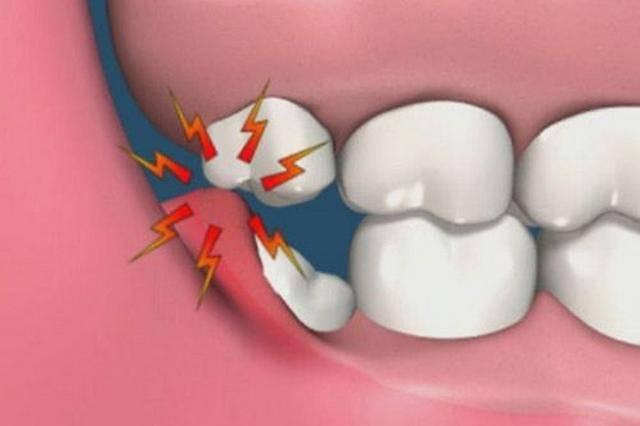 Почему болит зуб мудрости и нужно ли его удалять