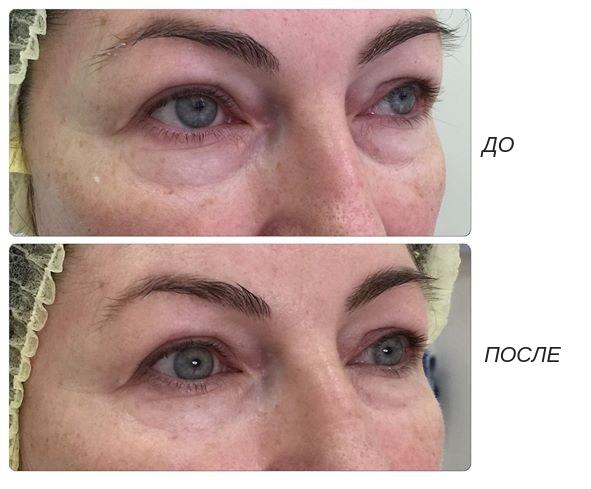Биоревитализация вокруг глаз и век от синяков и отеков
