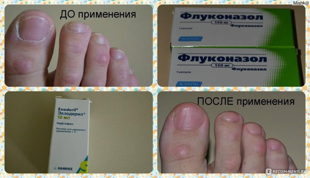 Профилактика грибка стоп и ногтей