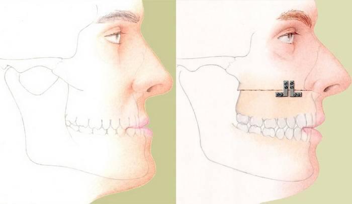 Виды корригирующей остеотомии, реабилитация после операции