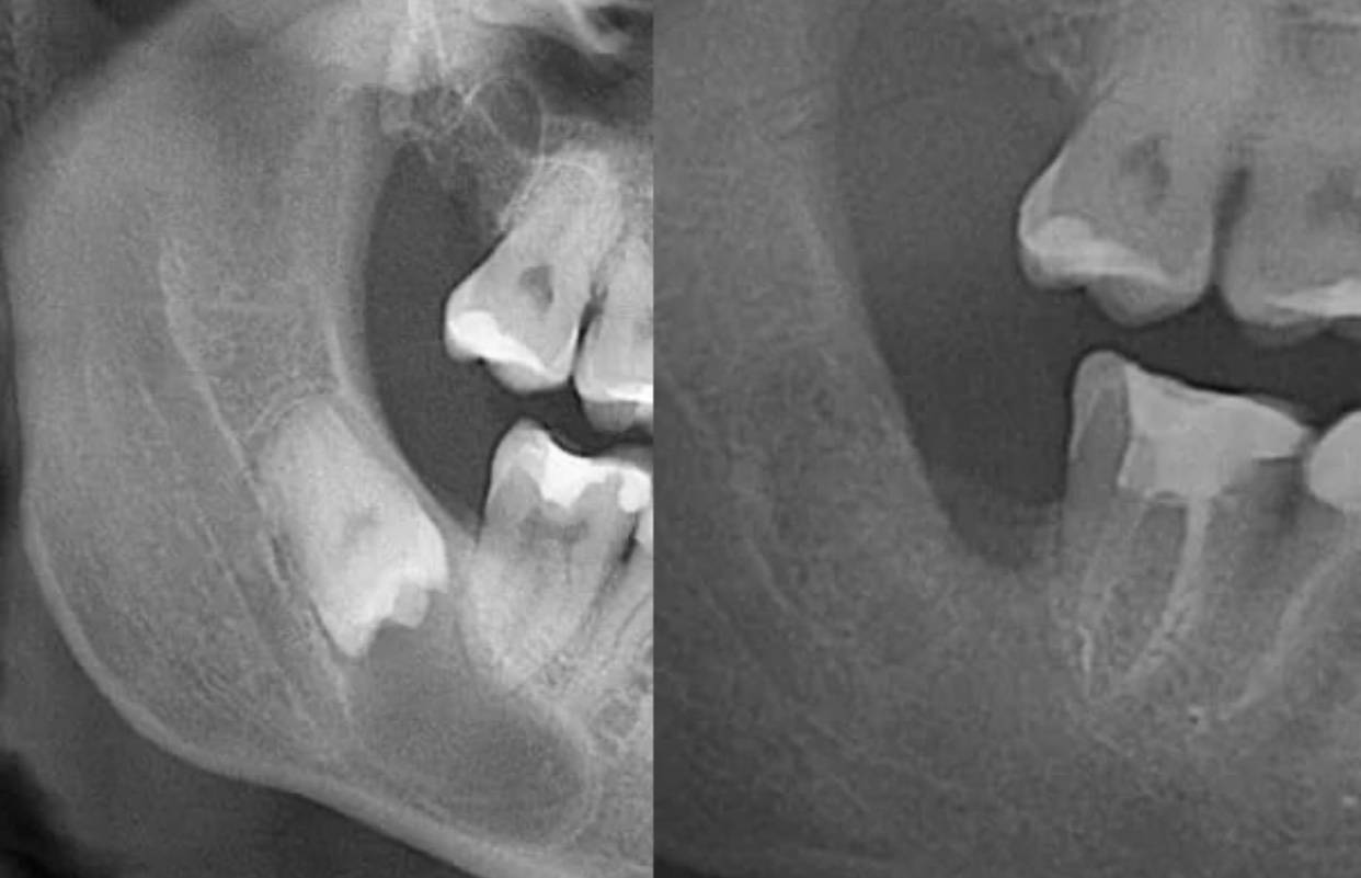 Экзостоз десны после удаления зуба: причины, симптомы, лечение