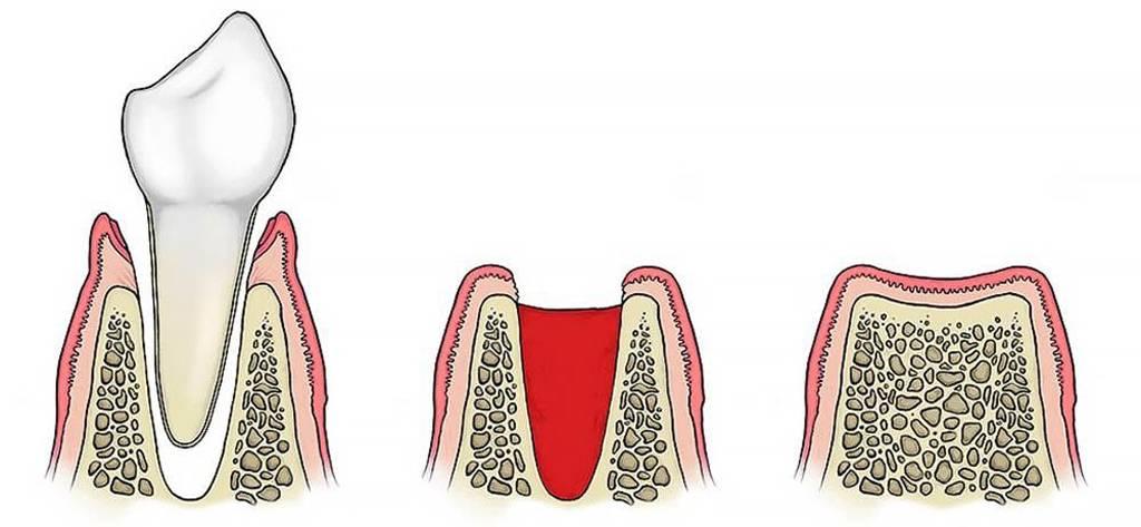 Если сильно болит десна после удаления зуба: что делать и как облегчить состояние?