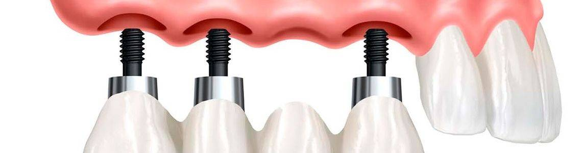Гарантии в стоматологии - какие бывают, на что действуют