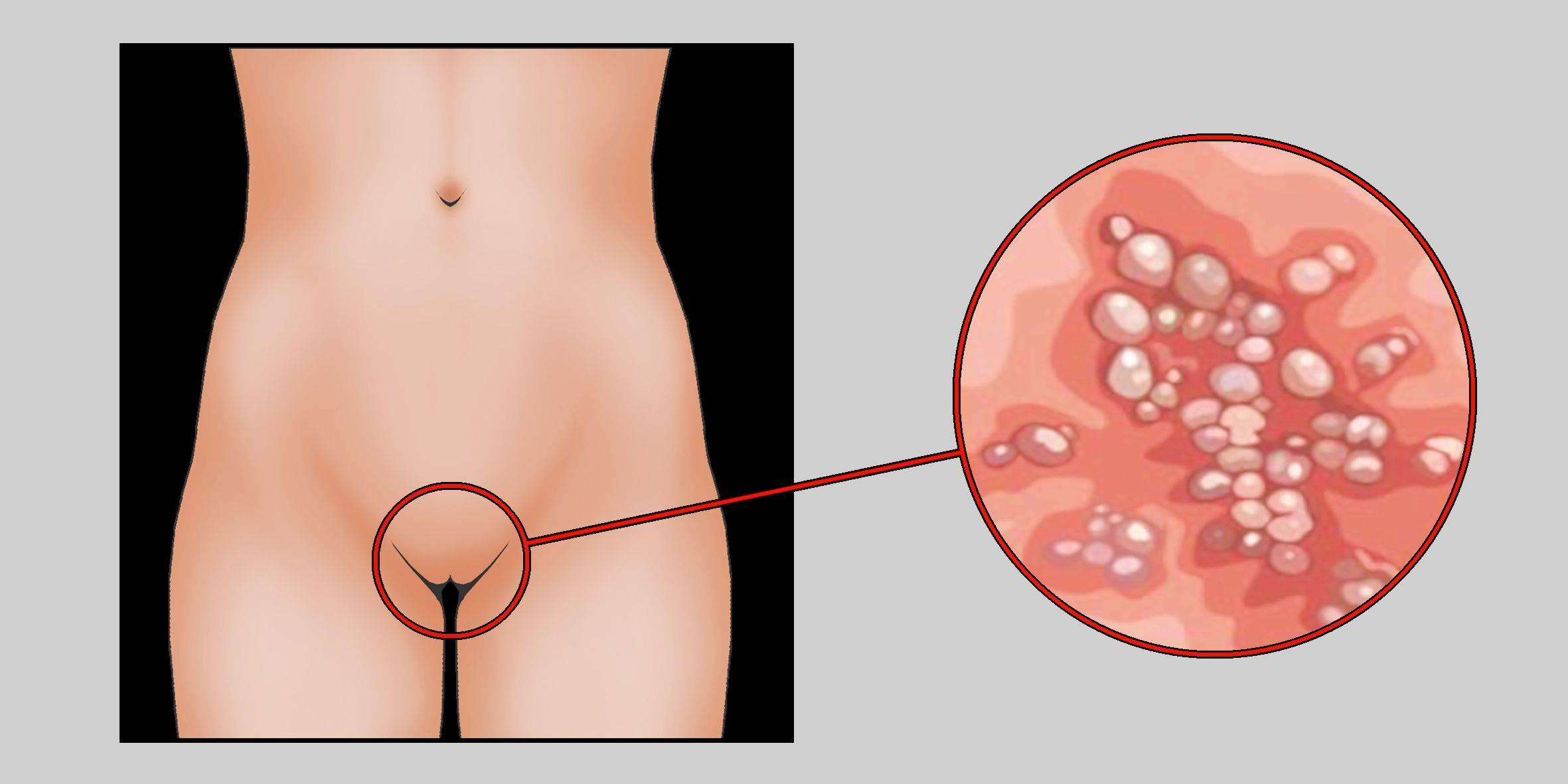 Молочница у женщин причины лечение инкубационный период