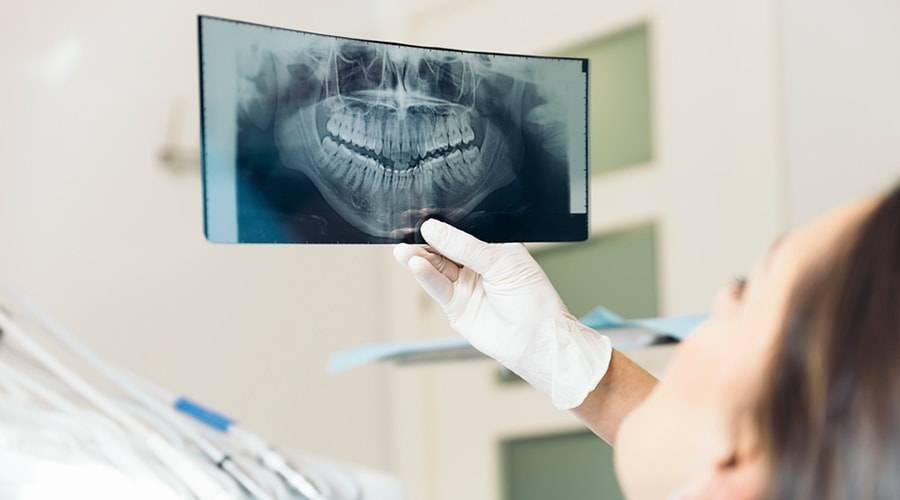 Прицельный снимок зуба: рентгеновские снимки, доза облучения