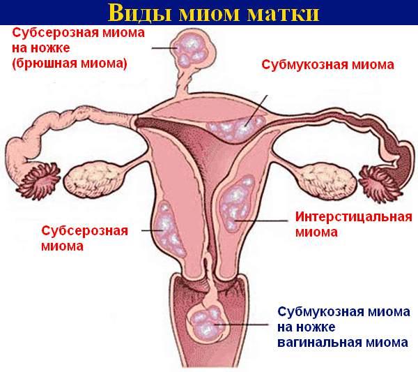 Секреты диеты при миоме матки: основные принципы питания и меню при заболевании матки