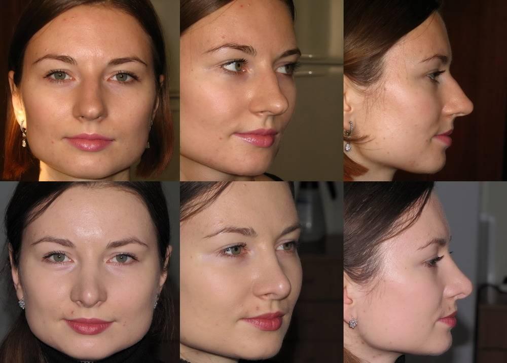 Ринопластика широкого носа — преимущества операции