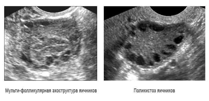 Мультифолликулярные яичники и беременность — возможно ли