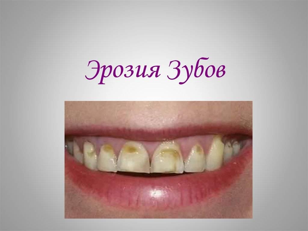 Виды эрозии эмали зубов — причины, симптомы и лечение зубных эрозий