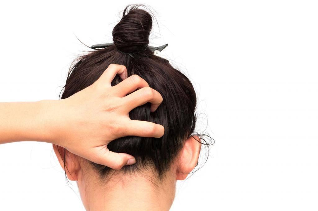 Что делать если у вас сильная перхоть, чешется голова: возможные причины, аптечные средства и народные методы избавления от зуда