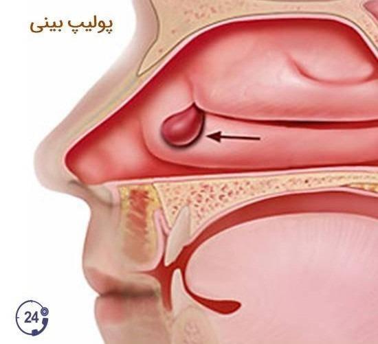 Эффективное лечение полипов в носу — мази, спреи и капли