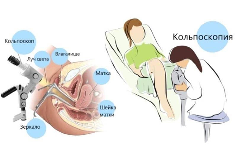 Как определяет беременность врач-гинеколог на приёме?