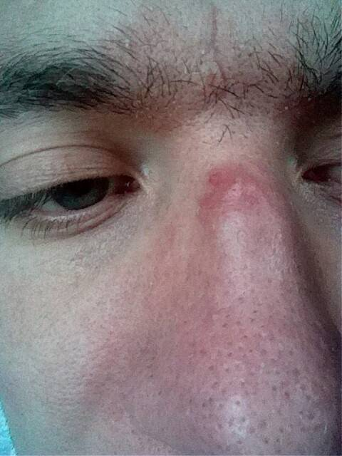 Как при сифилисе проваливается нос: стадии и фото