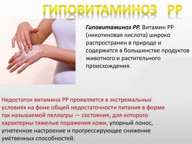 О нехватке каких витаминов свидетельствует сухая кожа рук? причины возникновения проблемы и способы её решения